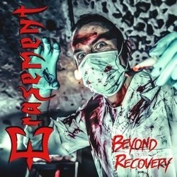Erasement – Beyond Recovery
